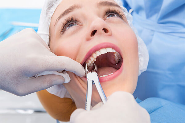 tooth extraction at-Good-Samaritan-Dental-Implant-Institute
