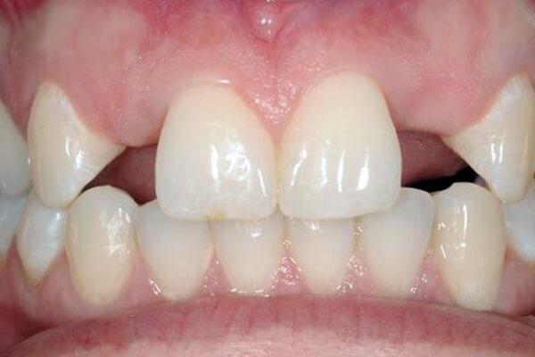 Congenitally Missing Teeth