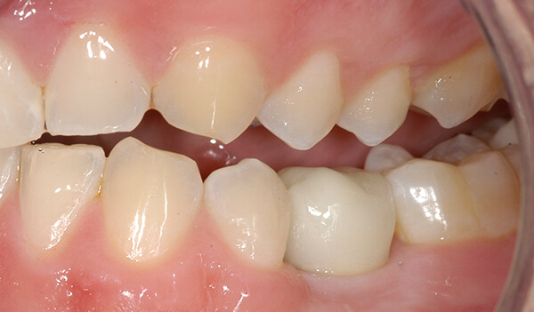 Dental Implant Example three After good samaritan implant institute