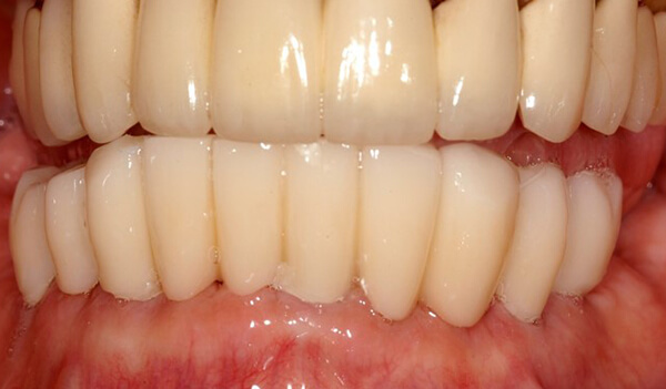 Dental Implant Example Two After good samaritan implant institute