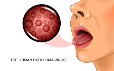 HPV Infection and Oropharyngeal Cancer