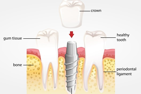 Understanding the Anatomy of a Dental Implant and How it Works